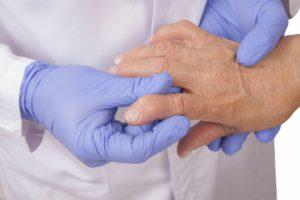Диагностика-и-лечение-ревматоидного-артрита