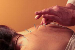 рефлексотерапия и массаж от Victory Clinic