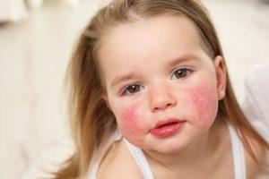pishhevaya-allergiya